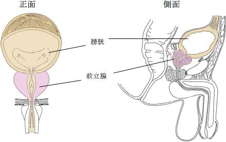 膀胱 留置 用 カテーテル 男性