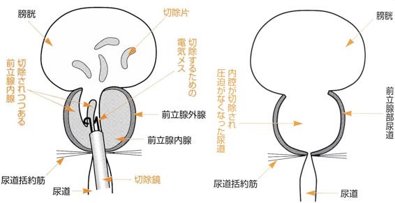 と は タンポナーデ 膀胱 膀胱のタンポナーデについて