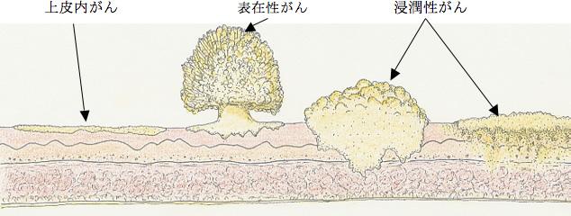 が ん 膀胱